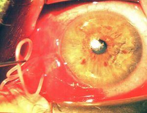 Emberi szemből mütétileg eltávolított bőrféreg (Dirofilaria repens)